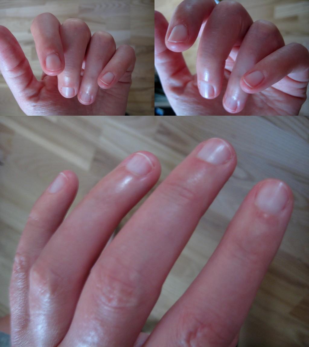 sklerodermifingre